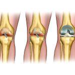 החלפת מפרק ברך, ברך בריאה, שחוקה ולאחר ניתוח החלפת מפרק- פרופ' דבי