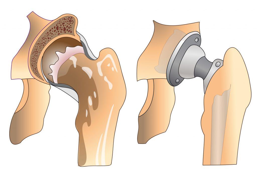 אילוסטרציה - מפרק ירך לפני ואחרי ניתוח