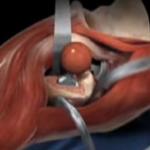 סרטון המראה את מהלך החלפת מפרק ירך בגישה קדמית