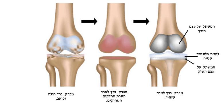 ניתוח החלפת מפרק ברך