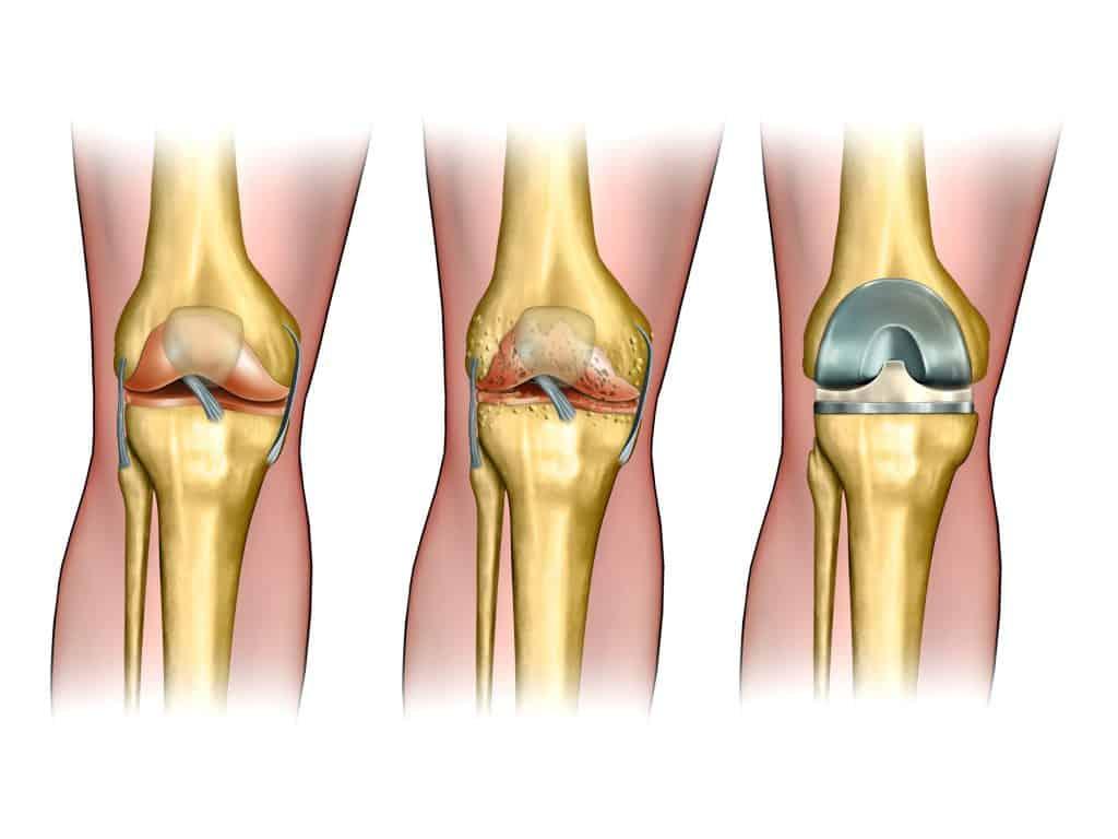 מפרק ברך בריא, מפרק שחוק ומפרק מלאכותי