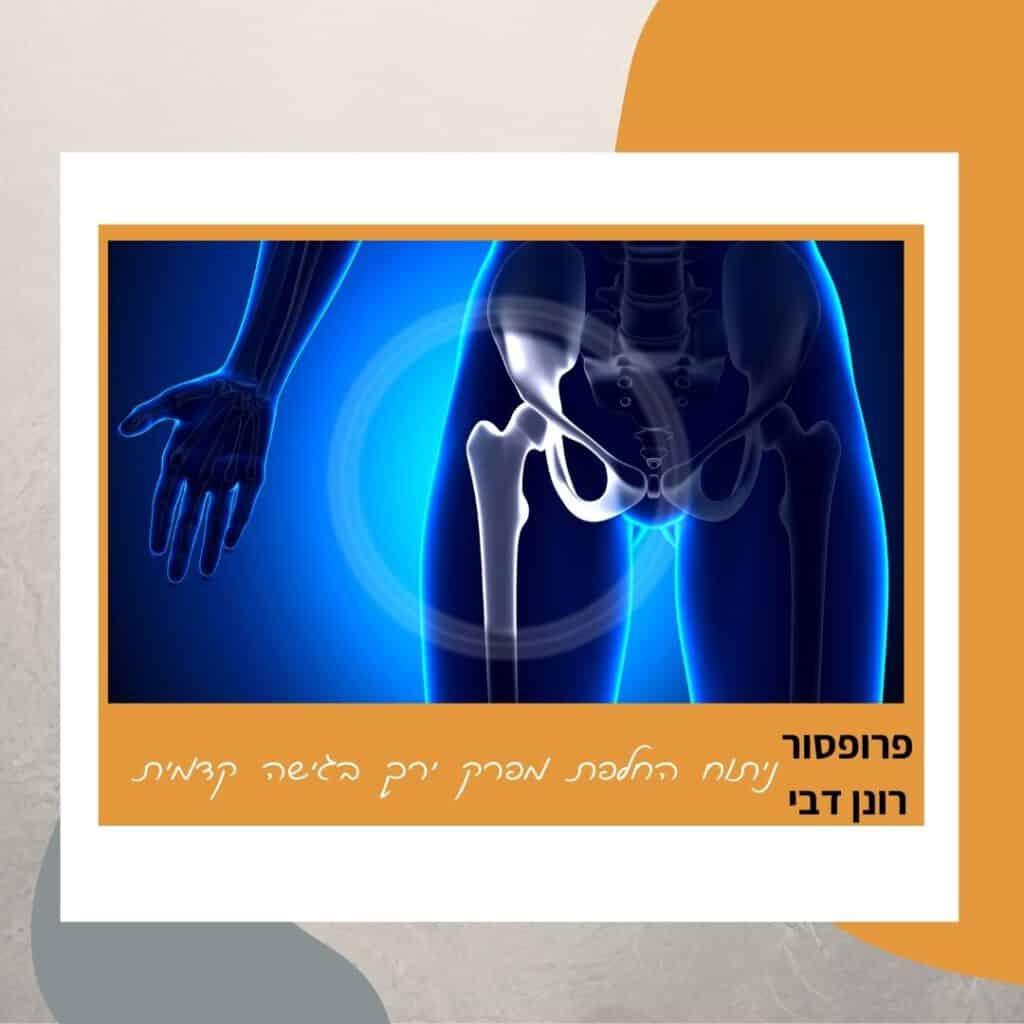 ניתוחי החלפת מפרק ירך