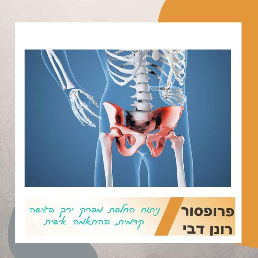 ניתוח החלפת מפרק ירך בגישה קדמית