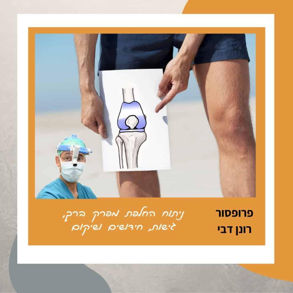 ניתוח החלפת מפרק ברך, פרופ' דבי אורתופד ברכיים