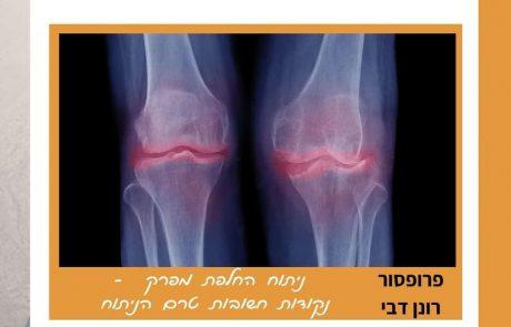 ניתוח החלפת מפרק ברך – נקודות חשובות טרם הניתוח