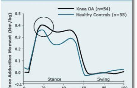שחיקת סחוסים – היבטים ביומכניים באוסטאוארתריטיס