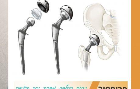 ניתוח החלפת מפרק ירך בגישה הקינמטית