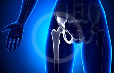 ניתוח החלפת מפרק ירך – נקודות חשובות טרם הניתוח