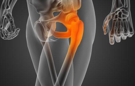 אוסטיאופורוזיס חולפת, (Transient Osteoporosis – TO) ובצקת מח עצם